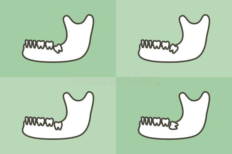 套智齿的类型在下颚骨或下颌的 向量例证