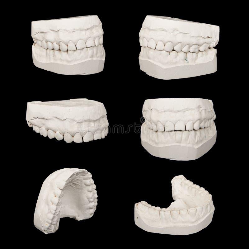 套牙齿铸件石膏模型 库存图片