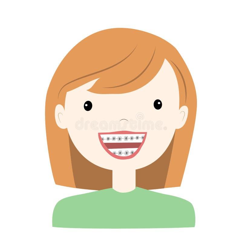 女孩佩带的括号牙系统 r 库存例证