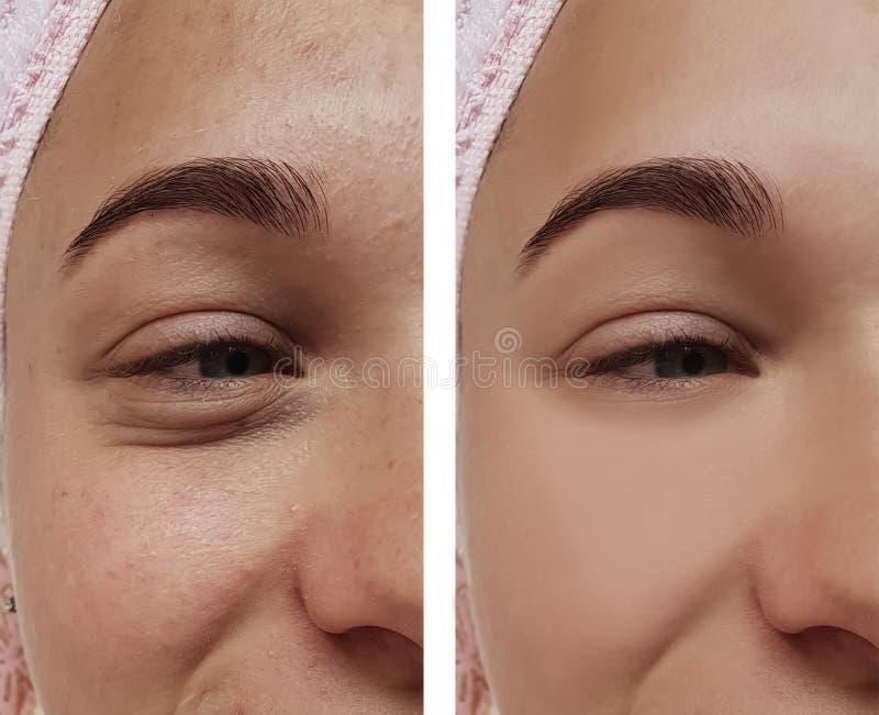 女孩眼睛治疗,在做法前后,疗法粉刺 免版税库存照片