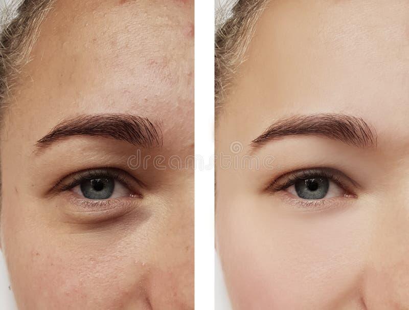 女孩眼睛治疗,在做法前后,粉刺 免版税库存照片