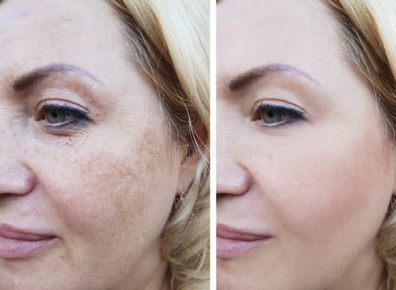女孩面孔起皱纹在前后,更正化妆用品举的染色 图库摄影