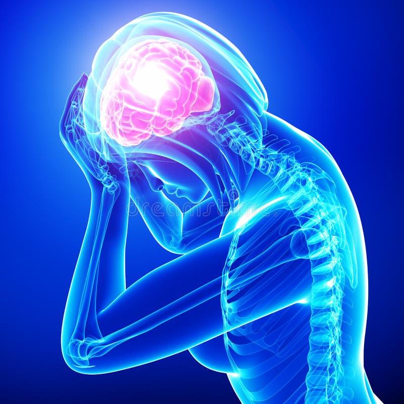 女性头疼/偏头痛  向量例证