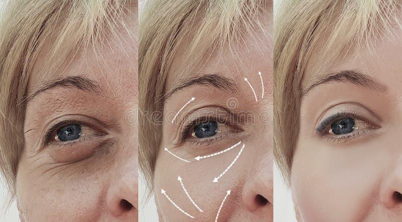 女性成人面部在化妆做法前后的皱痕回复治疗成熟耐心区别,箭头 图库摄影