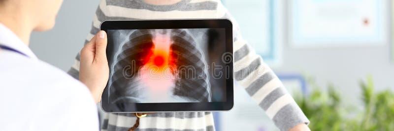 女性有超显示肺病学问题的现代扫描的平板电脑的军医审查的女孩 库存照片