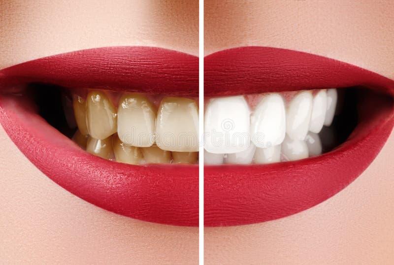 女性牙特写镜头宏指令在漂白前后的 牙齿健康和口头关心概念 幸福微笑与红色嘴唇 免版税库存图片