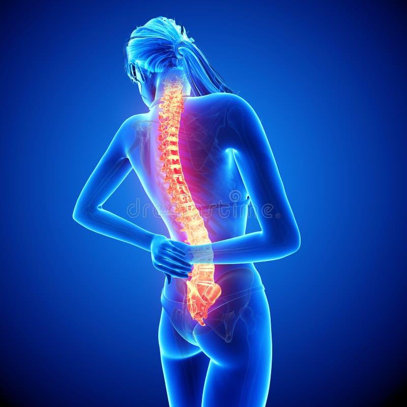 女性脊椎痛苦 向量例证