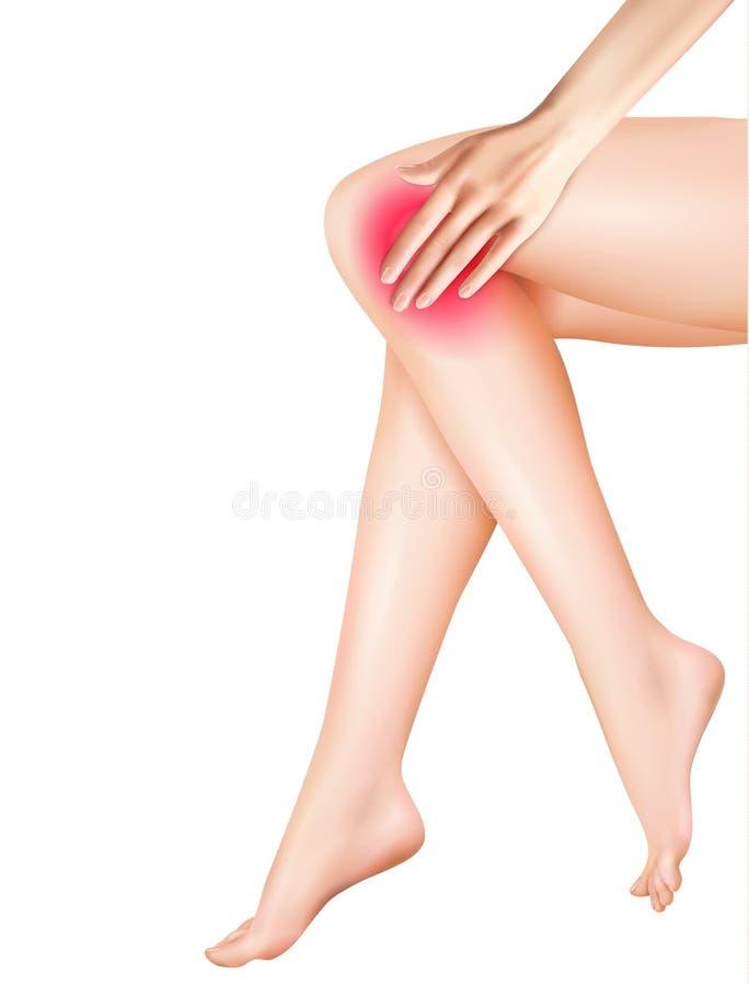 女性腿和痛苦现实例证 库存例证