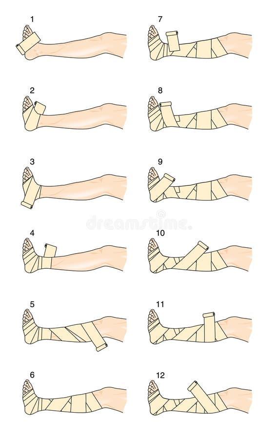 如何应用轻击棒腿绷带 库存例证