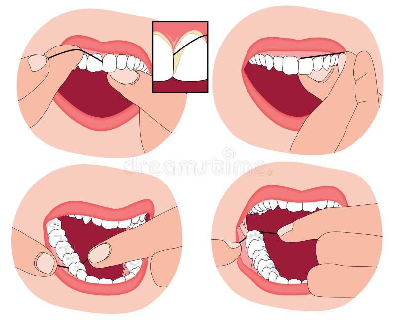 如何清洁牙齿您的牙 库存例证