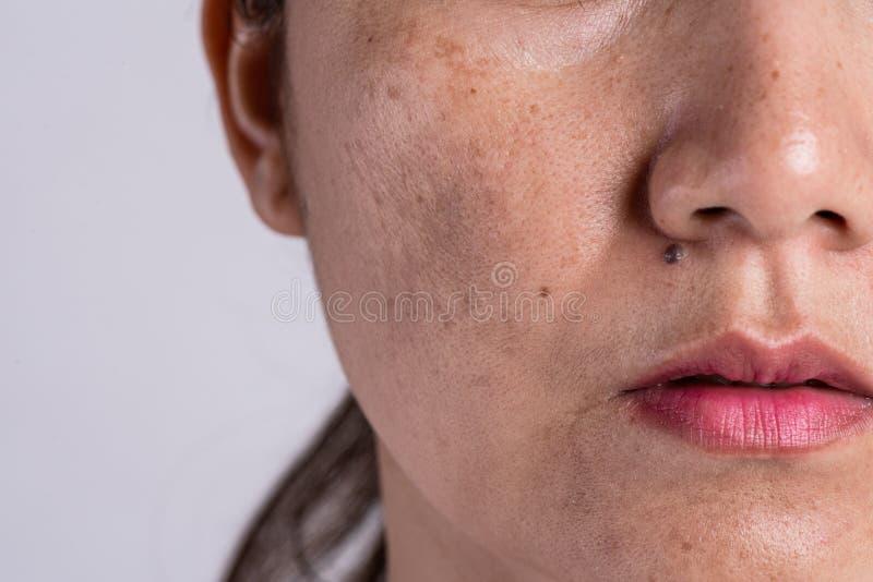 妇女以有问题的皮肤和粉刺伤痕 问题skincare和健康概念 皱痕melasma黑点雀斑干燥和 库存图片