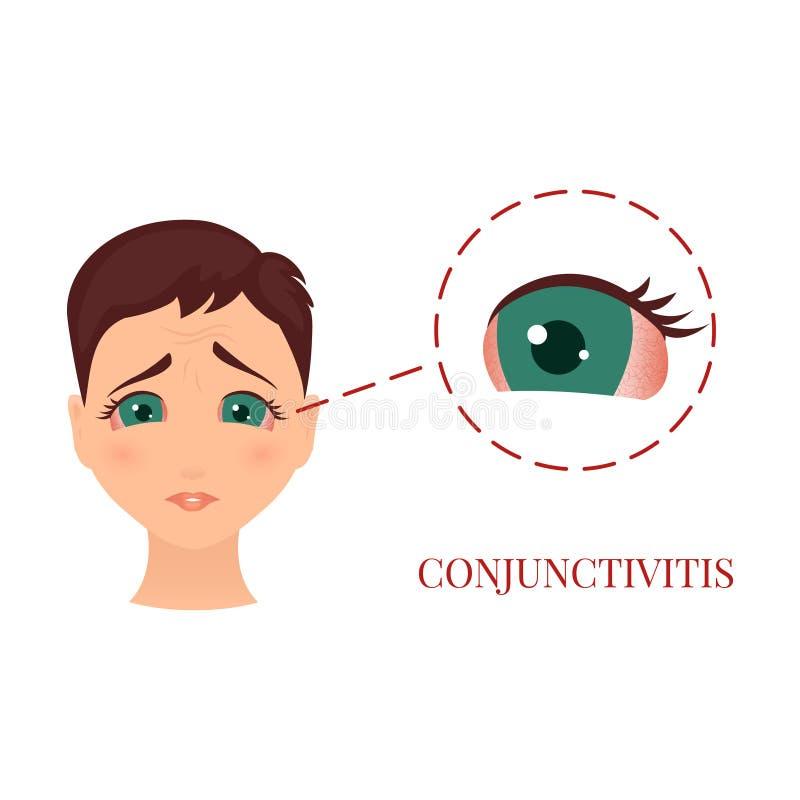 妇女以结膜炎 向量例证