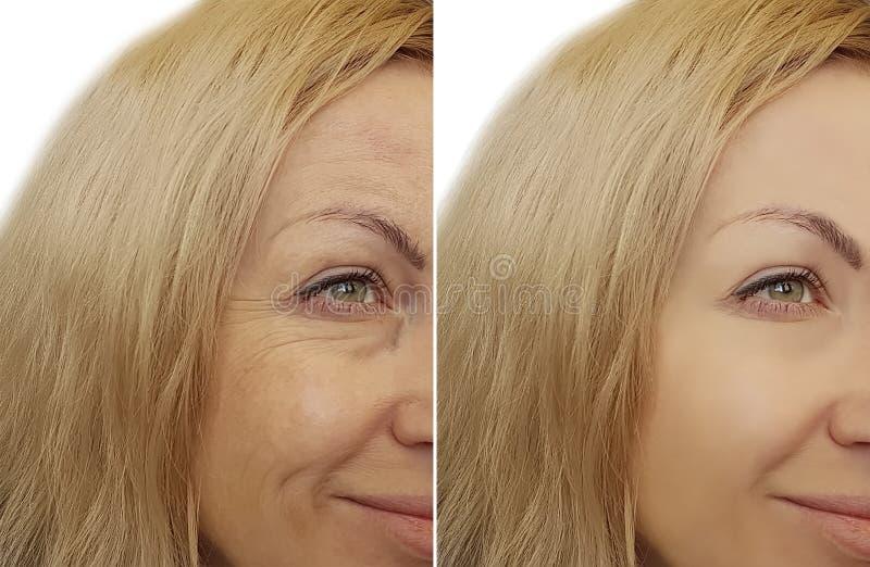 妇女前后面孔皱痕 免版税库存图片
