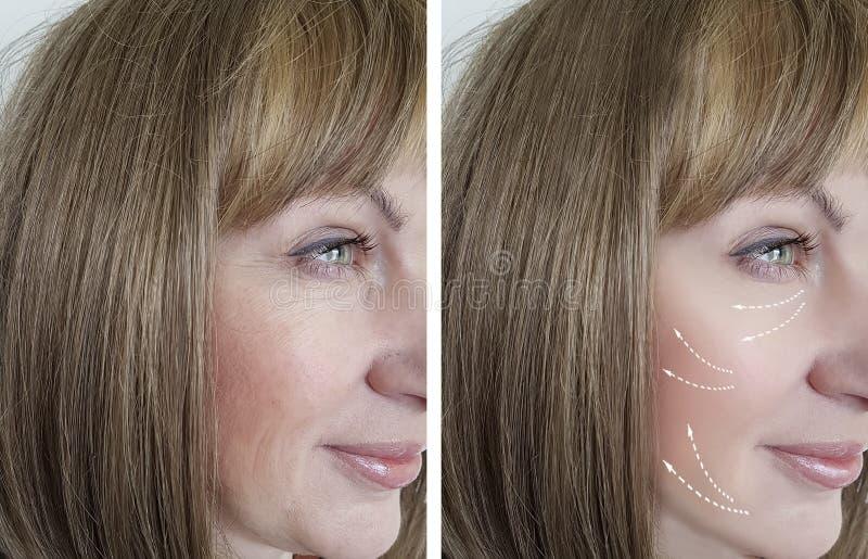 妇女在举在再生结果医学做法以后的结果治疗前起皱纹,面部 库存图片