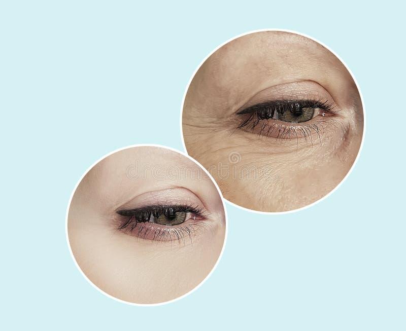 妇女在拼贴画做法前后的眼睛皱痕 免版税库存图片