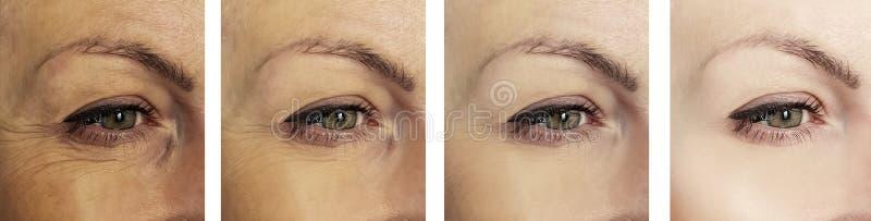 妇女在撤除区别拼贴画做法前后的眼睛皱痕 免版税库存照片
