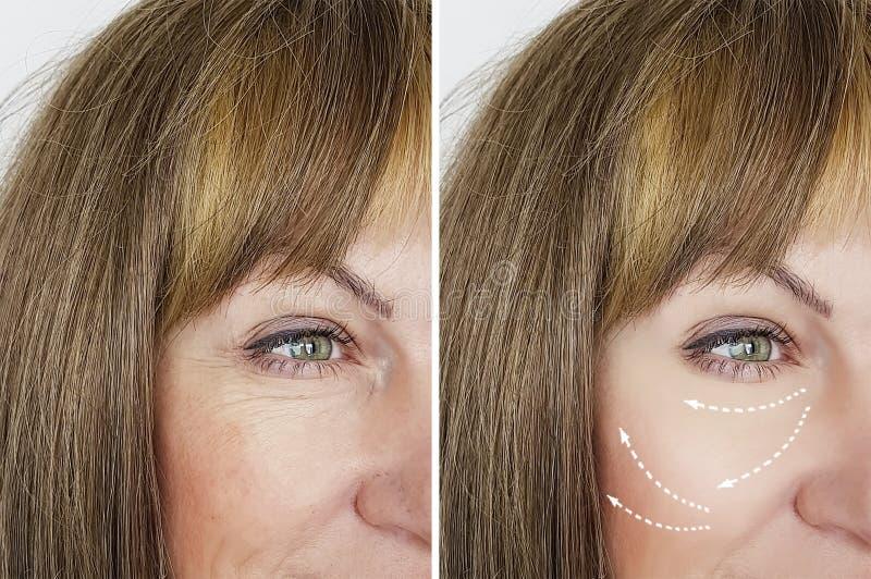 妇女在结果举在再生结果医学做法以后的美容师治疗前起皱纹,面部 免版税图库摄影