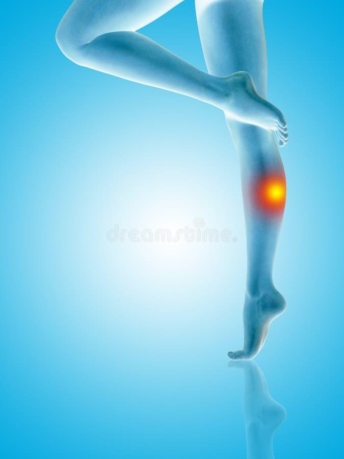 妇女女孩腿和脚以创伤小牛痛苦或疼痛 向量例证