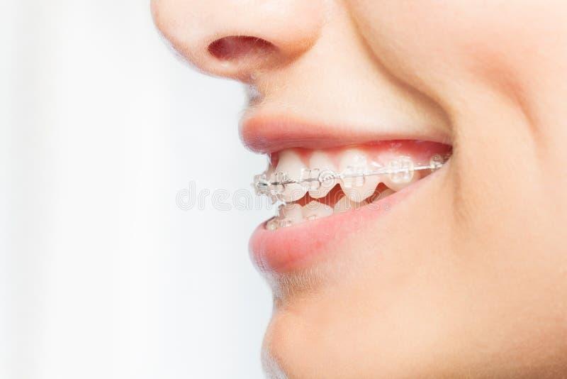 妇女微笑的侧视图图片与清楚的括号的 库存图片