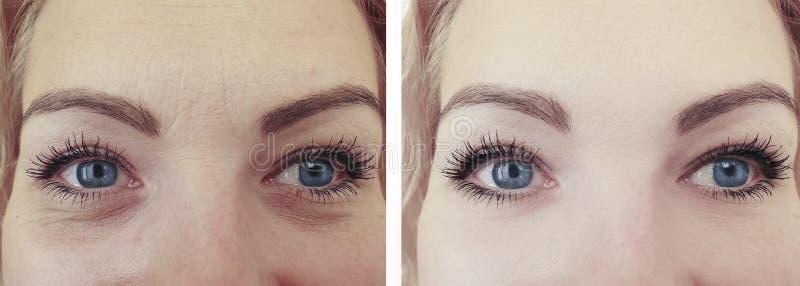 妇女成人在反眼睛举的治疗的治疗,变老的做法以后以前起皱纹 免版税库存图片