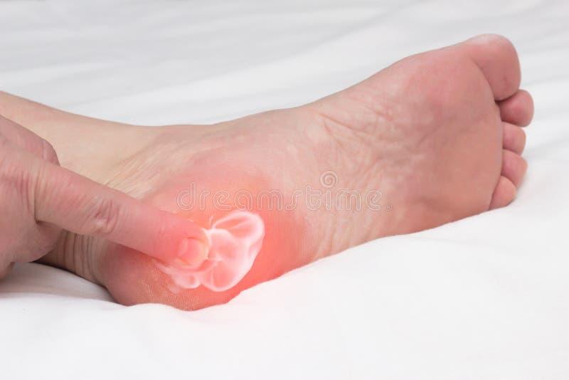 妇女摩擦刺和osteophytes,在脚跟的斑点踢马刺,炎症撤除的治疗的医治用的香脂奶油  库存照片