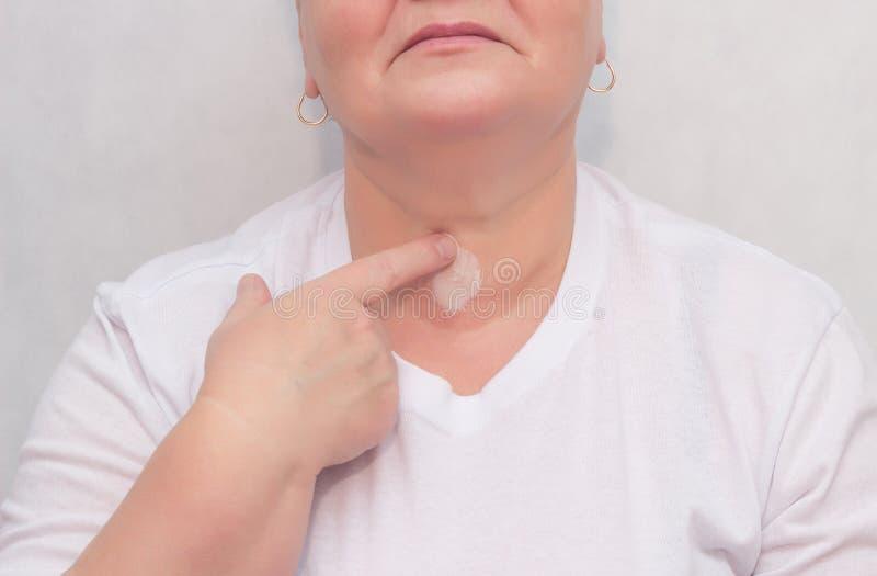 妇女摩擦甲状腺的治疗奶油胶凝体,甲状腺的治疗,特写镜头,医药 免版税库存照片