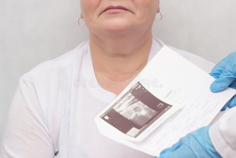 妇女由内分泌学家,医生保留超声波扫描白色背景内分泌系统的甲状腺激素咨询 免版税库存图片