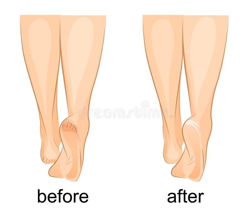 妇女的脚,破裂脚跟和健康 库存例证