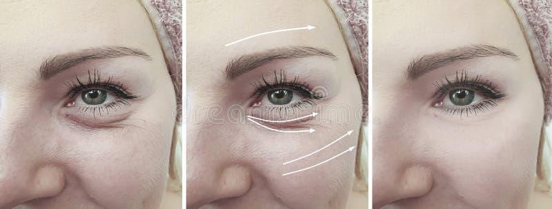 妇女面孔折痕箭头区别作用在治疗前后的眼睛撤除 免版税库存照片