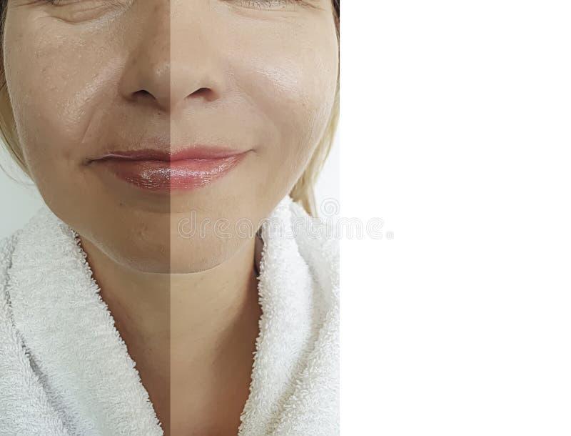 妇女面孔眼睛在水合的回复整容术治疗以后以前起皱纹疗法更正 免版税库存照片