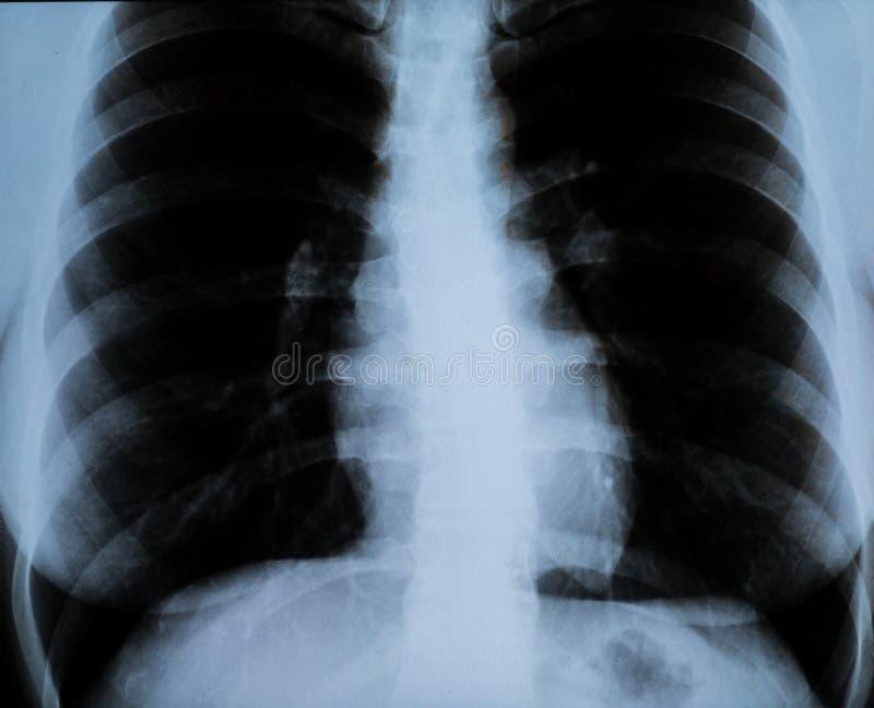 妇女` s胸口的X-射线 库存照片