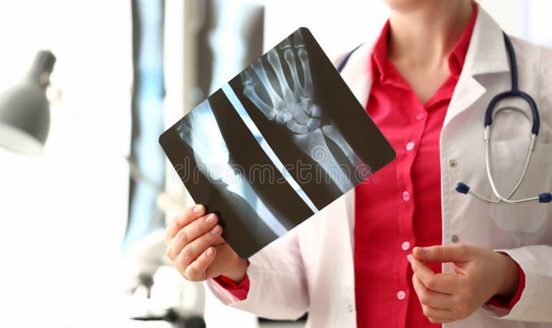 妇女Holding医生右手骨头X-射线图象 免版税库存照片