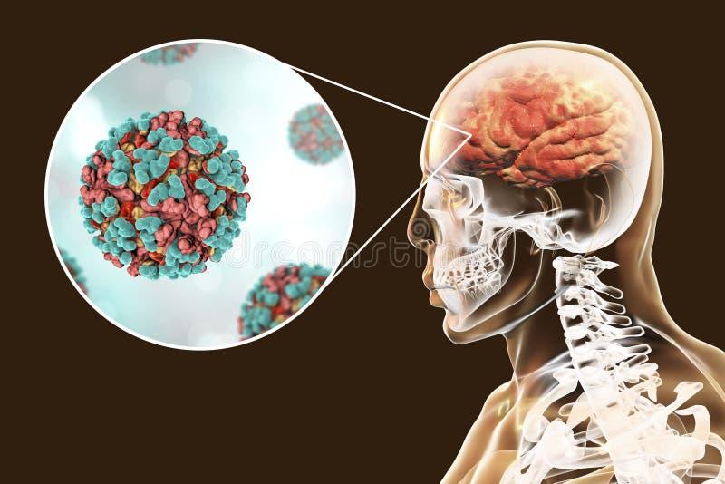 委内瑞拉马脑炎,医疗概念 向量例证