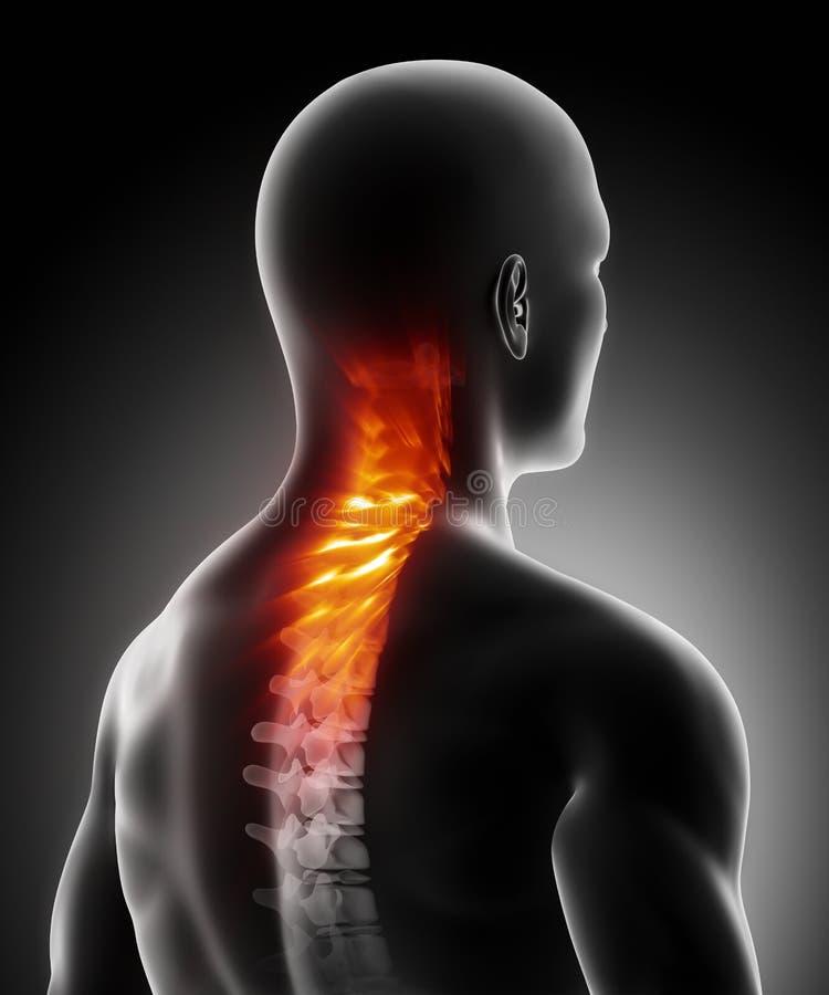子宫颈痛苦脊椎 皇族释放例证