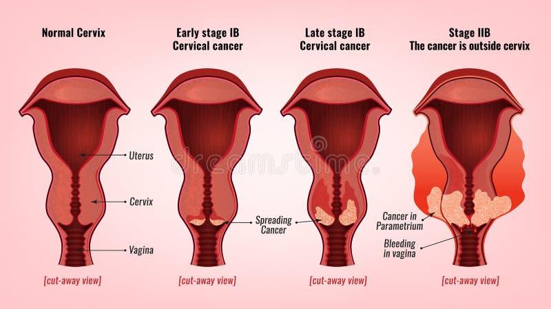 子宫颈癌图象 皇族释放例证