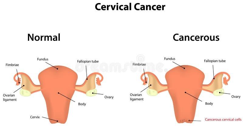 子宫颈癌 皇族释放例证