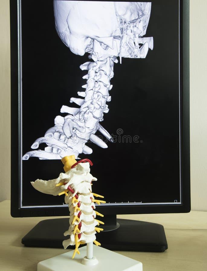 子宫颈脊椎模型和MRI图片 图库摄影