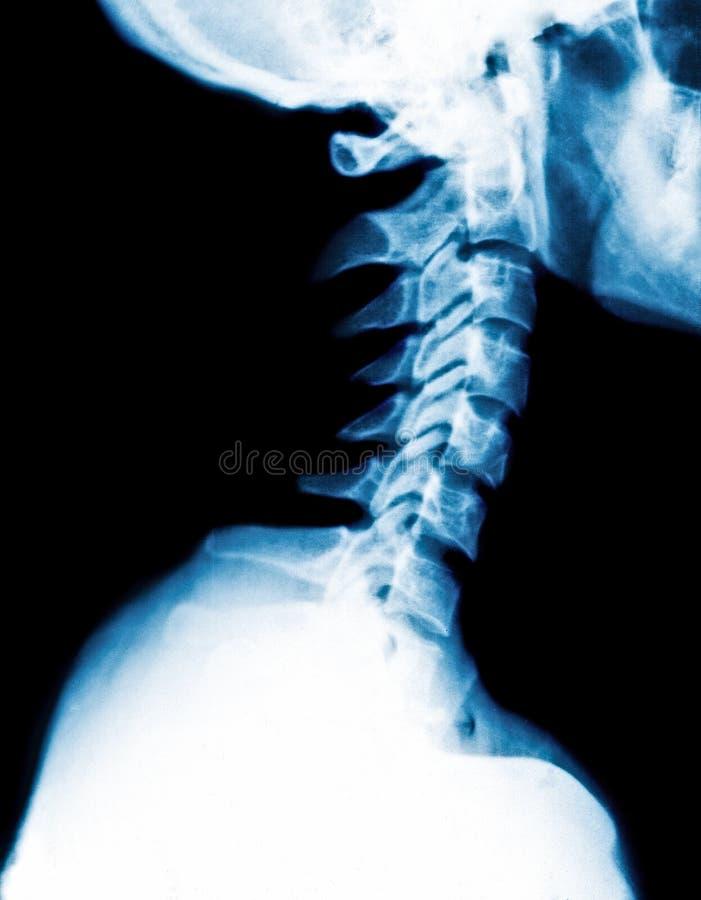 子宫颈脊椎的X-射线图象 免版税库存图片