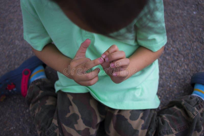 孩子伤害了他的手指,充满他他的手指受伤的痛苦的男孩 图库摄影