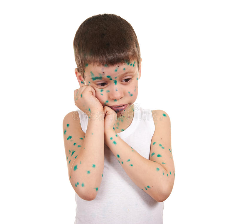 孩子有在皮肤的病毒 免版税库存照片