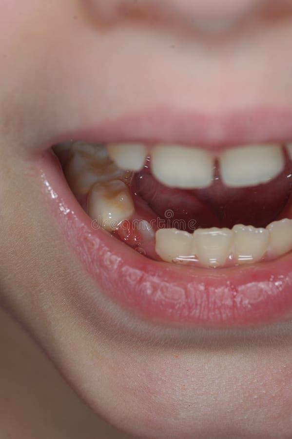 孩子的乳齿 库存照片