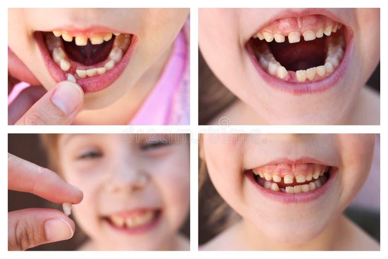 孩子的拼贴画掉了乳齿 6岁儿童活动的牙齿 女孩在他的手上握牙 免版税库存照片