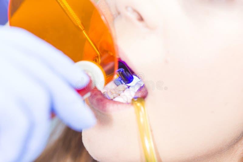 安排牙被对待 免版税库存照片