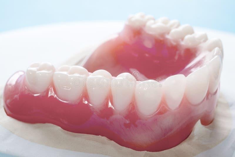 完全假牙或充分的假牙 免版税库存图片