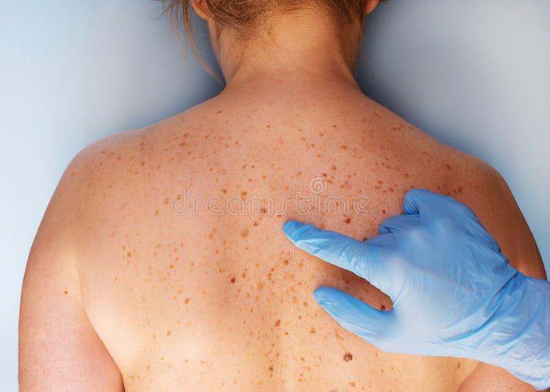 审查诊所的皮肤病学家患者 与一个痣的问题皮肤在后面 特写镜头非常eyedroppers高分辨率视图 免版税库存照片