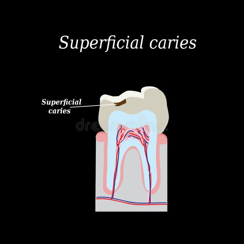 家庭牙龋 在黑色的传染媒介例证 向量例证