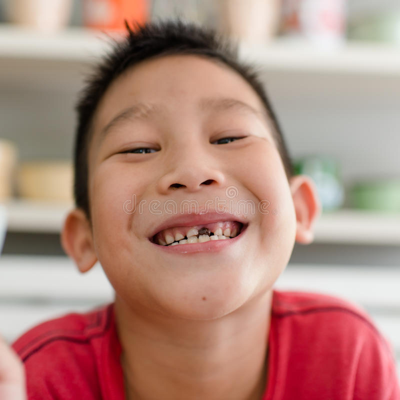 小亚裔男孩和断牙。 库存图片