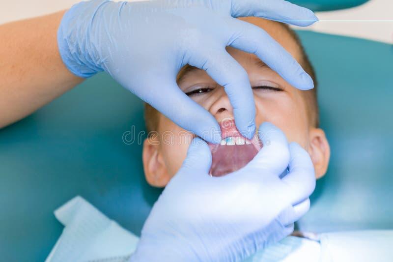 小儿科牙医审查在牙医椅子的小男孩牙在牙齿诊所 审查一点boy& x27的牙医; s 免版税库存图片