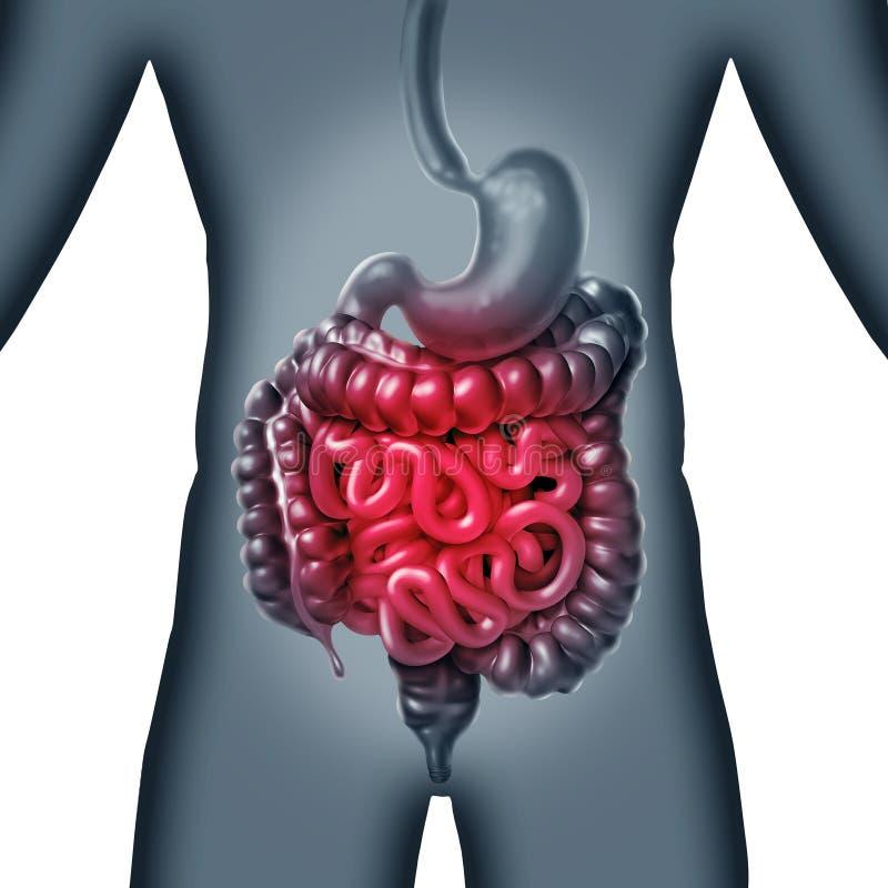 小肠痛苦 向量例证