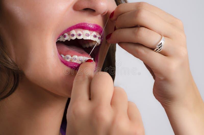 少妇特写镜头有清洁牙齿牙的括号的 免版税图库摄影